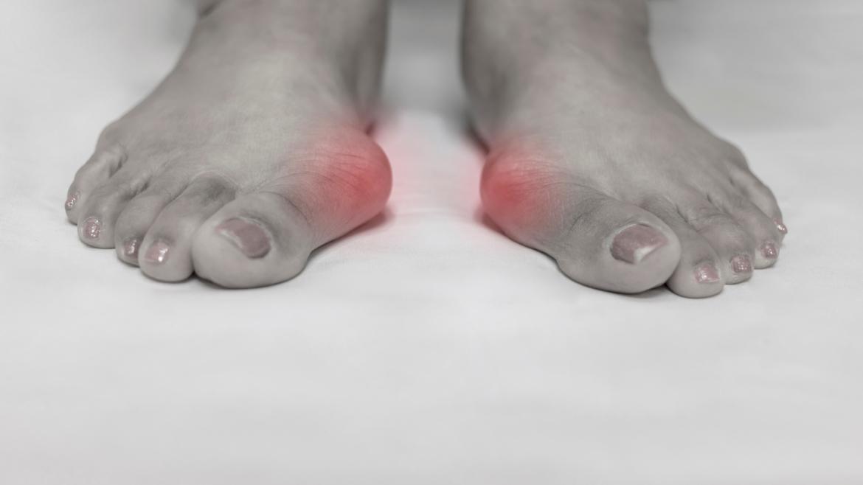 Alluce Valgo e Patologie dell'Avampiede